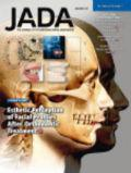 Esthetic perception of changes in facial profile resulting from orthodontic treatment with extraction of premolars